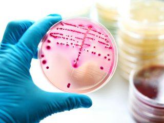 La Sifilide esiste ancora?